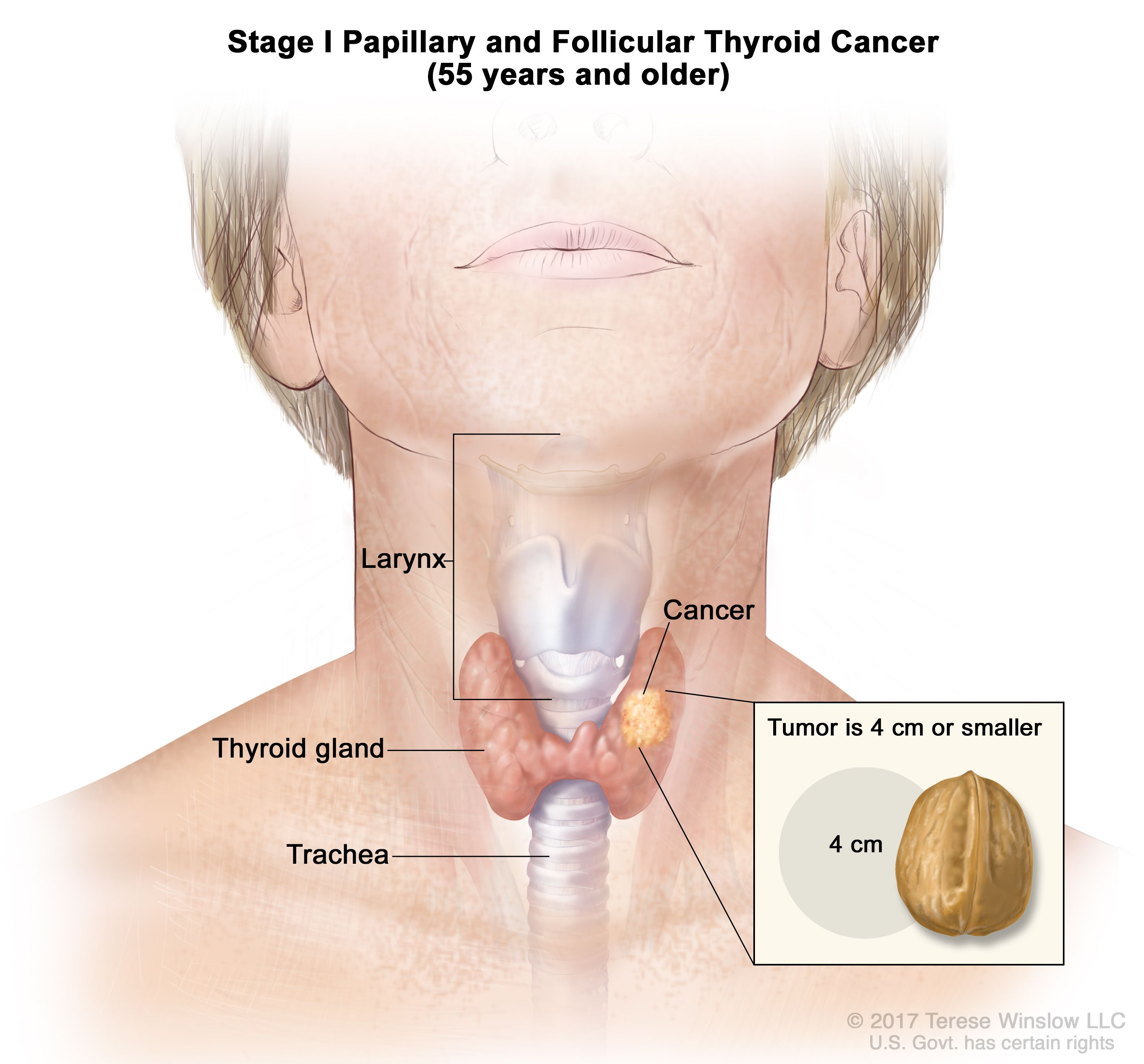 Endocrine Surgery Thyroid Cancer