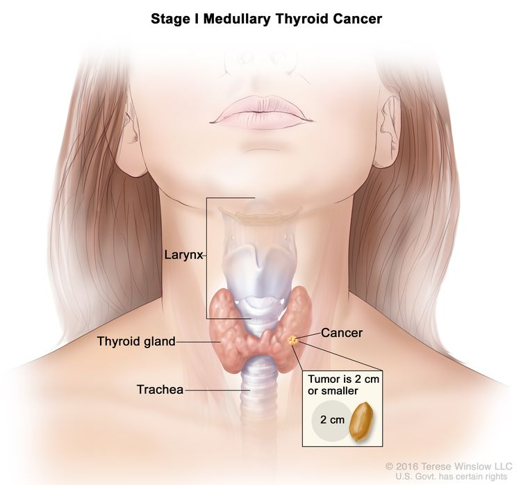 Stage I medullary thyroid cancer; drawing shows cancer in the thyroid gland and the tumor is 2 centimeters or smaller. An inset shows 2 centimeters is about the size of a peanut. Also shown are the larynx and trachea.