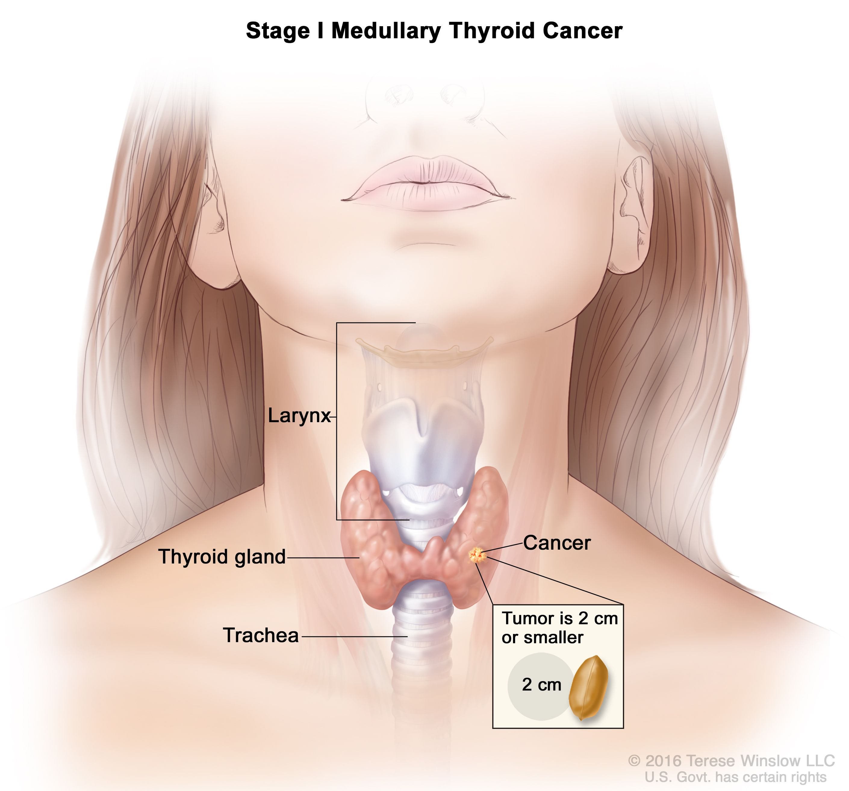 General Surgery Thyroid Cancer
