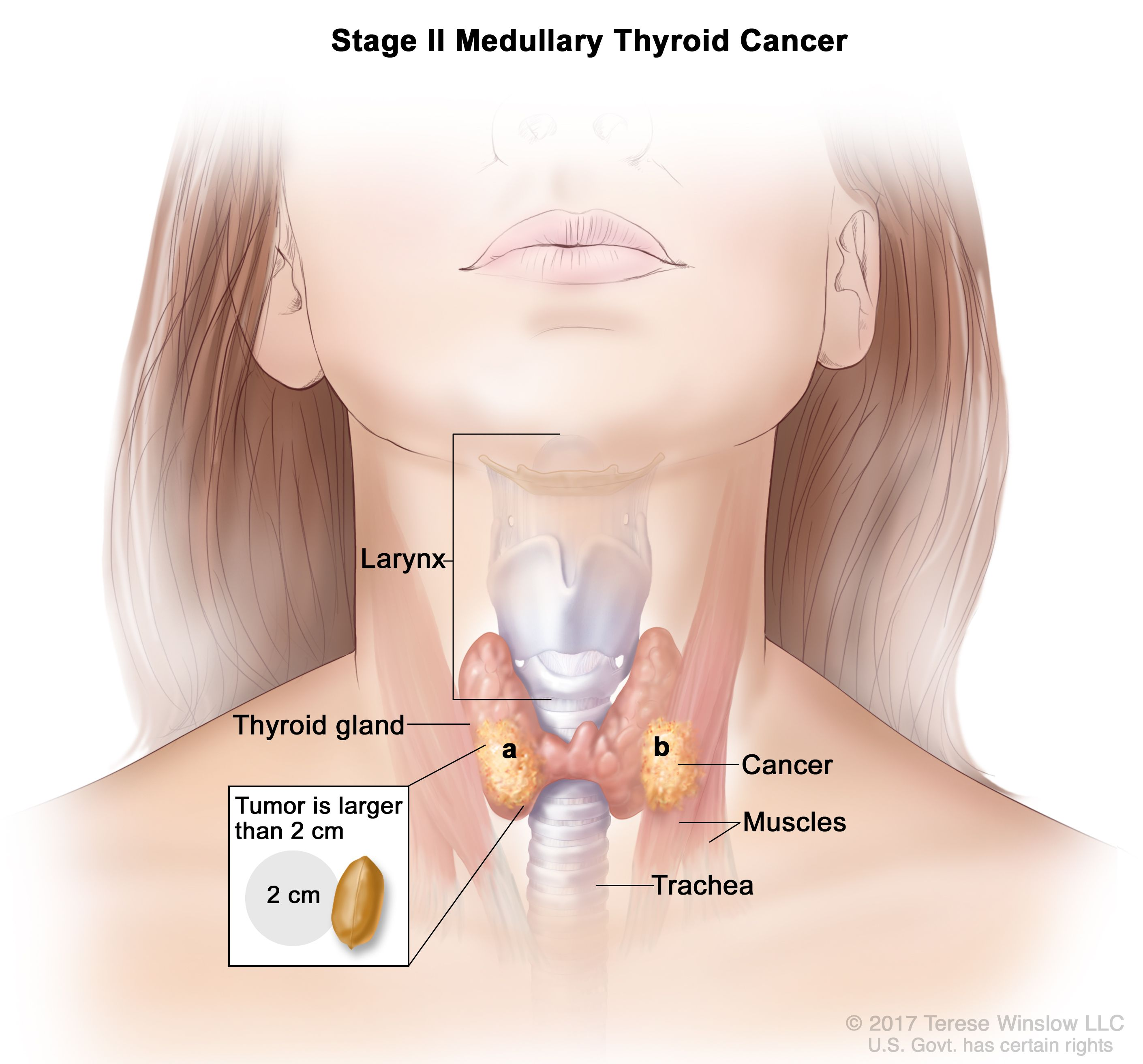 Thyroid Cancer Treatment Adult Pdq Patient Version National Cancer Institute