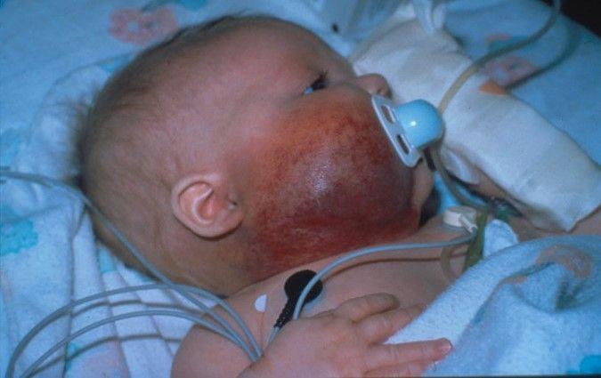 顔面および頸部の右側のカポジ型血管内皮腫病変を示す写真。