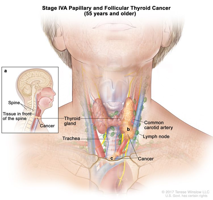 Stage IVA papillary and follicular thyroid cancer in patients 55 years and older; drawing shows cancer has (a) spread to tissue in front of the spine (inset), (b) surrounded the common carotid artery, and (c) surrounded the blood vessels in the area between the lungs. Also shown are the thyroid gland, trachea, and lymph nodes.