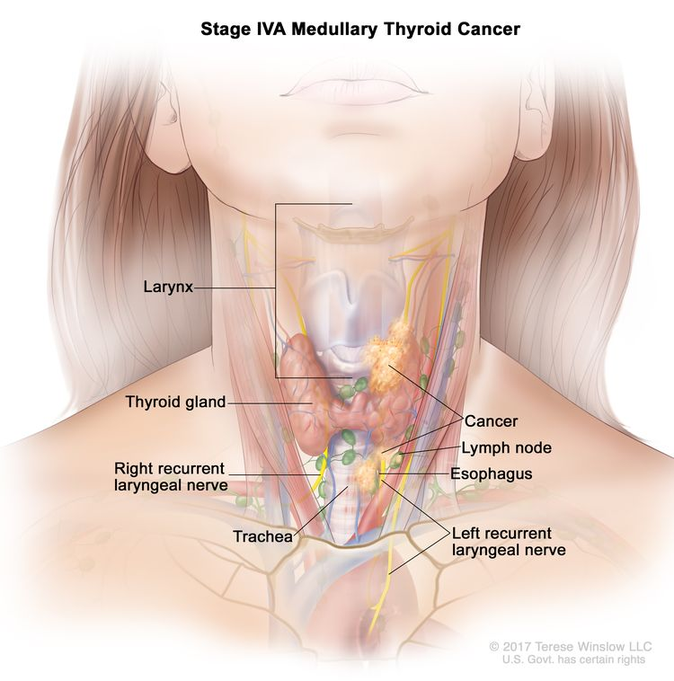 Stage IVA medullary thyroid cancer; drawing shows cancer in the thyroid gland and in the larynx, the esophagus, the left recurrent laryngeal nerve, the trachea, and a lymph node on one side of the neck. Also shown is the right recurrent laryngeal nerve.
