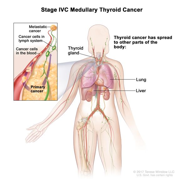Definition Of Stage Iv Medullary Thyroid Cancer Nci Dictionary Of Cancer Terms National Cancer Institute