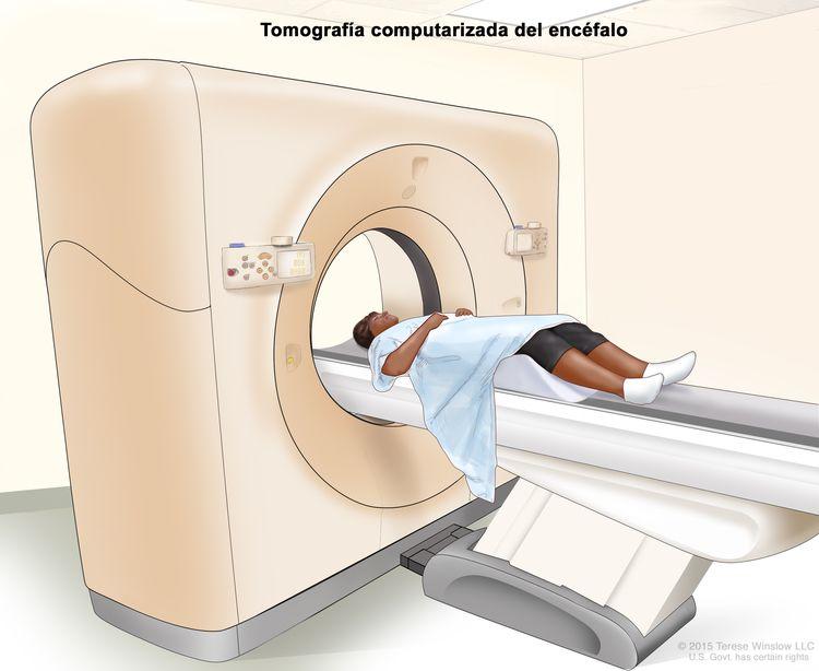Tomografía computarizada (TC) del encéfalo; en la imagen se observa un paciente acostado sobre una camilla que se desliza a través de un escáner de TC, que toma imágenes radiográficas del encéfalo.