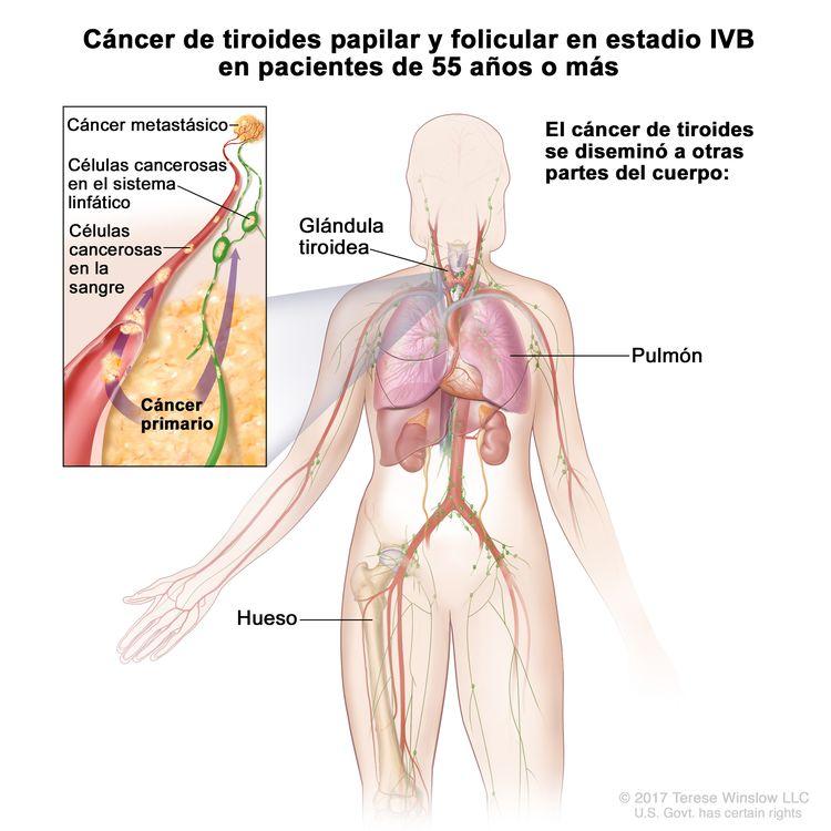 Cáncer de tiroides papilar y folicular en estadio IVB en pacientes de 55 años o más. En la imagen se muestran otras partes del cuerpo donde es posible que el cáncer de tiroides se disemine, como los pulmones y los huesos. En el recuadro se muestran las células cancerosas que se diseminan desde la tiroides, a través del sistema sanguíneo y linfático, hasta otra parte del cuerpo donde se formó el cáncer metastásico.
