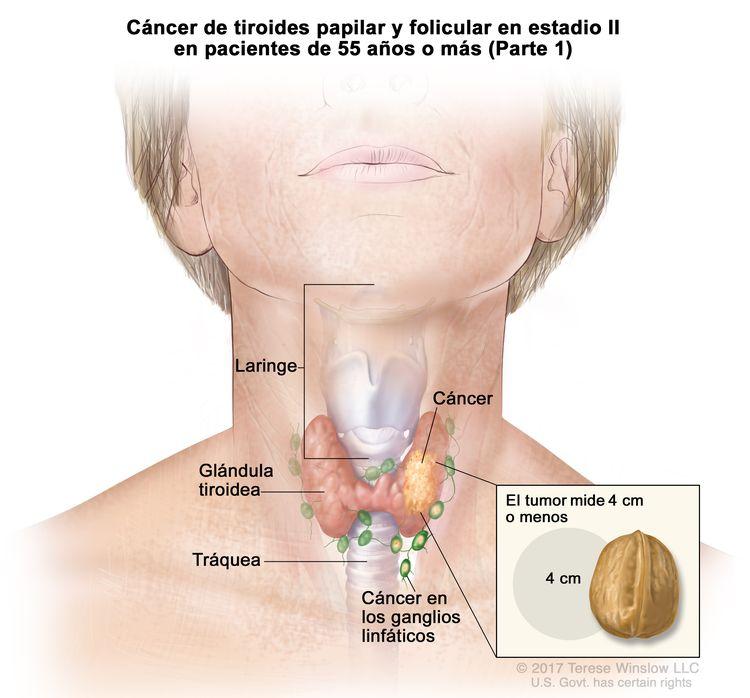 Cáncer de tiroides papilar y folicular en estadio II en pacientes de 55 años o más (Parte 1). En la imagen se muestra el cáncer en la glándula tiroidea y los ganglios linfáticos cercanos. El tumor mide 4 cm o menos. En el recuadro se observa que 4 cm es casi del tamaño de una nuez. También se muestran la laringe y la tráquea.