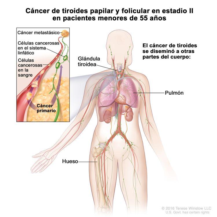Cáncer de tiroides papilar y folicular en estadio II en pacientes menores de 55 años. En la imagen se muestran otras partes del cuerpo donde es posible que el cáncer de tiroides se disemine, como los pulmones y los huesos. En el recuadro se muestran las células cancerosas que se diseminan desde la glándula tiroidea, a través del sistema linfático, hasta otra parte del cuerpo donde se formó el cáncer metastásico.