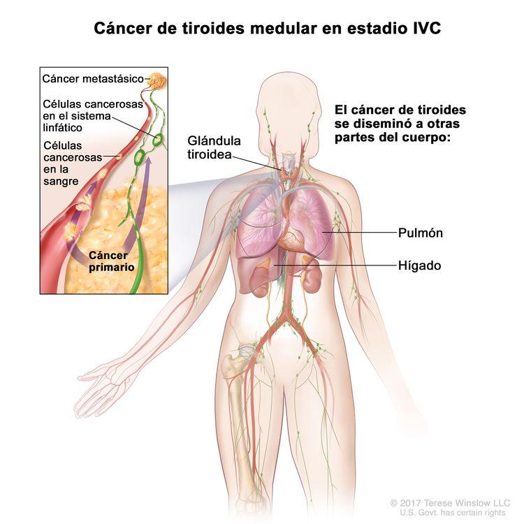 Cáncer de tiroides medular en estadio IVC. En la imagen se muestran otras partes del cuerpo donde es posible que el cáncer de tiroides se disemine, como el pulmón y el hígado. En el recuadro se muestran células cancerosas que se diseminan desde la tiroides, a través del sistema sanguíneo y linfático, hasta otra parte del cuerpo donde se formó el cáncer metastásico.