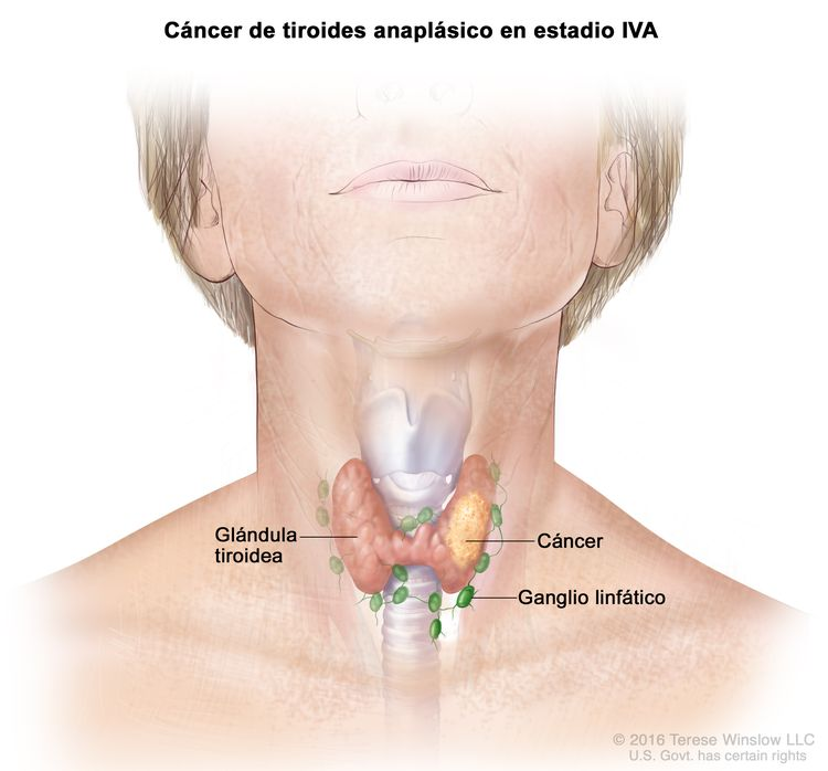 Cáncer de tiroides anaplásico en estadio IVA. En la imagen se muestra el cáncer en la glándula tiroidea. También se muestran los ganglios linfáticos.