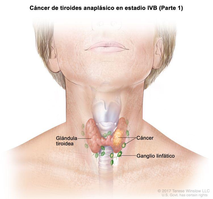 Cáncer de tiroides anaplásico en estadio IVB (Parte 1). En la imagen se muestra el cáncer en la glándula tiroidea y los ganglios linfáticos cercanos.