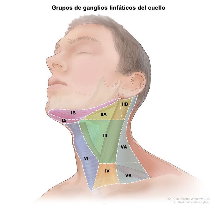 Grupos de ganglios linfáticos del cuello; el dibujo muestra seis grupos de ganglios linfáticos en el cuello: grupo IA y IB, grupo IIA y IIB, grupo III, grupo IV, grupo VA y VB, y grupo VI.