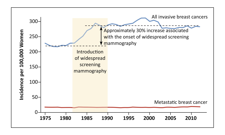 グラフは、スクリーニングマンモグラフィの導入と浸潤性乳がん発生率の増加との時間的な関係を示す。