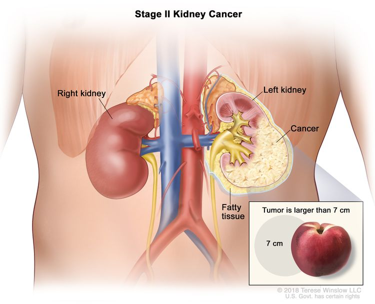 Stage II kidney cancer; drawing shows cancer in the left kidney and the tumor is larger than 7 centimeters. An inset shows 7 centimeters is about the size of a peach. Also shown are the fatty tissue and right kidney.