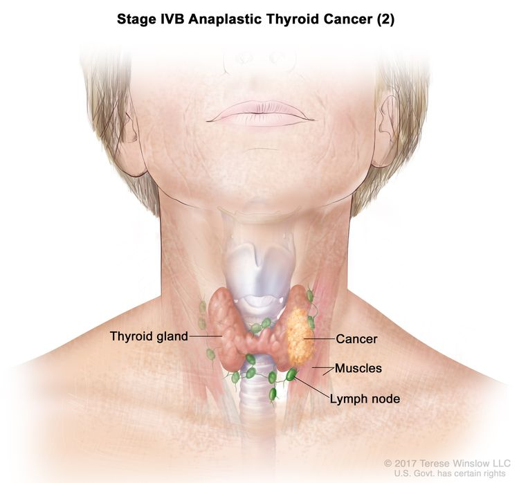 Thyroid Cancer Treatment Adult Pdq Patient Version National