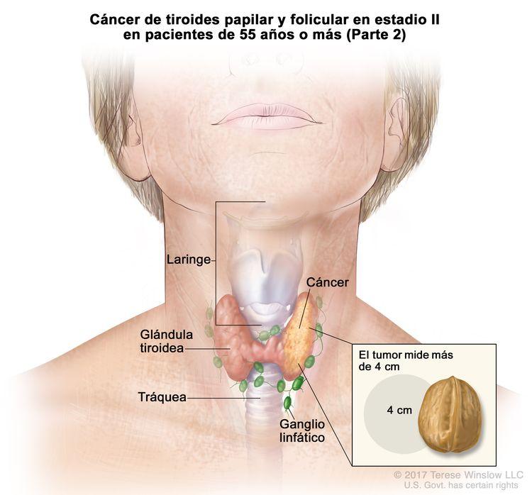 Cáncer de tiroides papilar y folicular en estadio II en pacientes de 55 años o más (Parte 2). En la imagen se muestran el cáncer en la glándula tiroidea y el tumor que mide más de 4 cm. En el recuadro se observa que 4 cm es casi del tamaño de una nuez. También se muestran los ganglios linfáticos, la laringe y la tráquea.