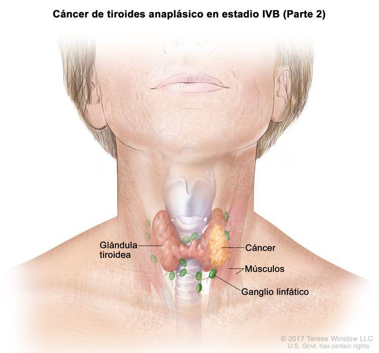 Cáncer de tiroides anaplásico en estadio IVB (Parte 2). En la imagen se muestra el cáncer en la glándula tiroidea y los músculos cercanos del cuello. También se muestran los ganglios linfáticos.