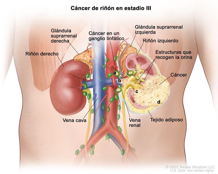 Cáncer de riñón en estadio III; en la ilustración se muestra cáncer en el riñón izquierdo y en: a) los ganglios linfáticos cercanos, b) la vena renal, c) las estructuras que recogen la orina y d) la capa de tejido adiposo que rodea el riñón. También se muestra el riñón derecho, la vena cava y las glándulas suprarrenales izquierda y derecha.