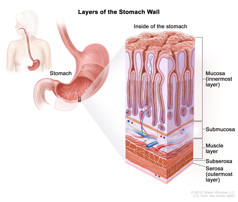gastric cancer jaundice