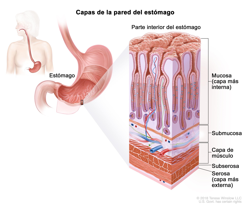 tratamiento de quimioterapia para cáncer gástrico
