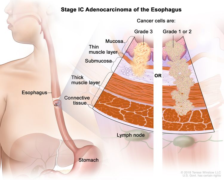 Stage IC adenocarcinoma of the esophagus; drawing shows the esophagus and stomach. A two-panel inset shows the layers of the esophagus wall: the mucosa layer, thin muscle layer, submucosa layer, thick muscle layer, and connective tissue layer. The lymph nodes are also shown. The left panel shows grade 3 cancer cells in the mucosa layer, thin muscle layer, and submucosa layer. The right panel shows grade 1 or 2 cancer cells in the mucosa layer, thin muscle layer, submucosa layer, and thick muscle layer.