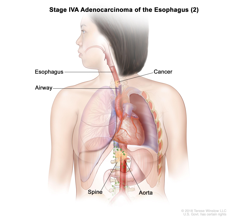 Етап IVA аденокарцином на хранопровода