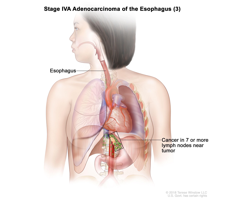 Етап IVA аденокарцином на хранопровода (3).  Ракът се е разпространил в 7 или повече лимфни възли близо до тумора.