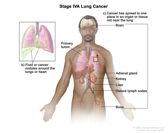 Definition of stage IV non-small cell lung cancer - NCI Dictionary of Cancer  Terms - National Cancer Institute