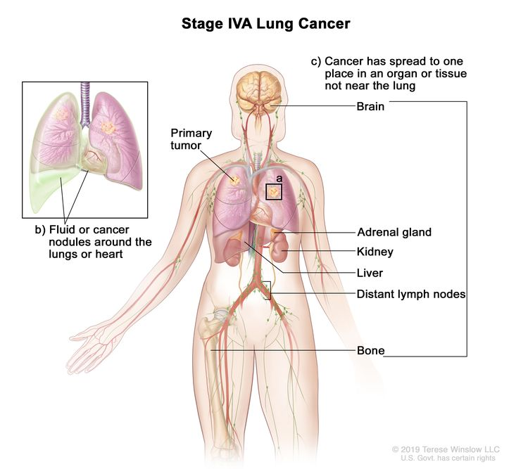 Stage IVA lung cancer; drawing shows a primary tumor in the right lung and (a) a tumor in the left lung. Also shown is (b) fluid or cancer nodules around the lungs or heart (inset), and (c) other organs or tissues where lung cancer may spread, including the brain, adrenal gland, kidney, liver, bone, and distant lymph nodes.
