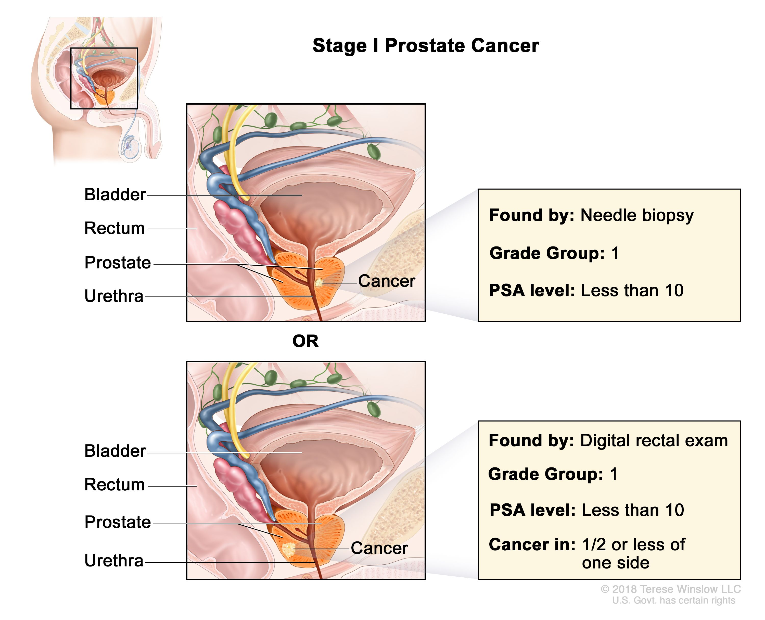 Prostate Cancer Treatment Pdq Patient Version National Cancer