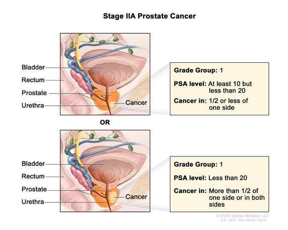 prostate cancer stages 1 10)