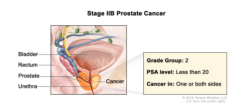 cancer de prostata gleason 7)