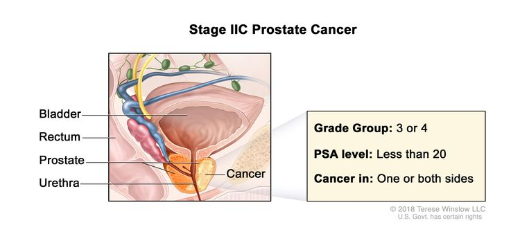 Stage IIC prostate cancer; drawing shows cancer in both sides of the prostate. The PSA level is less than 20 and the Grade Group is 3 or 4. Also shown are the bladder, rectum, and urethra.