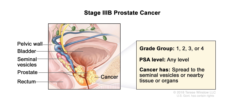 prostate cancer national cancer institute)