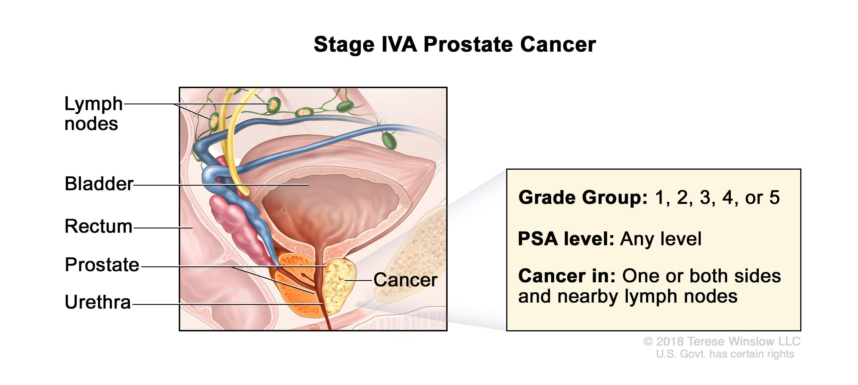 stage 4 metastatic prostate cancer forum Mi a prostatitis a férjben