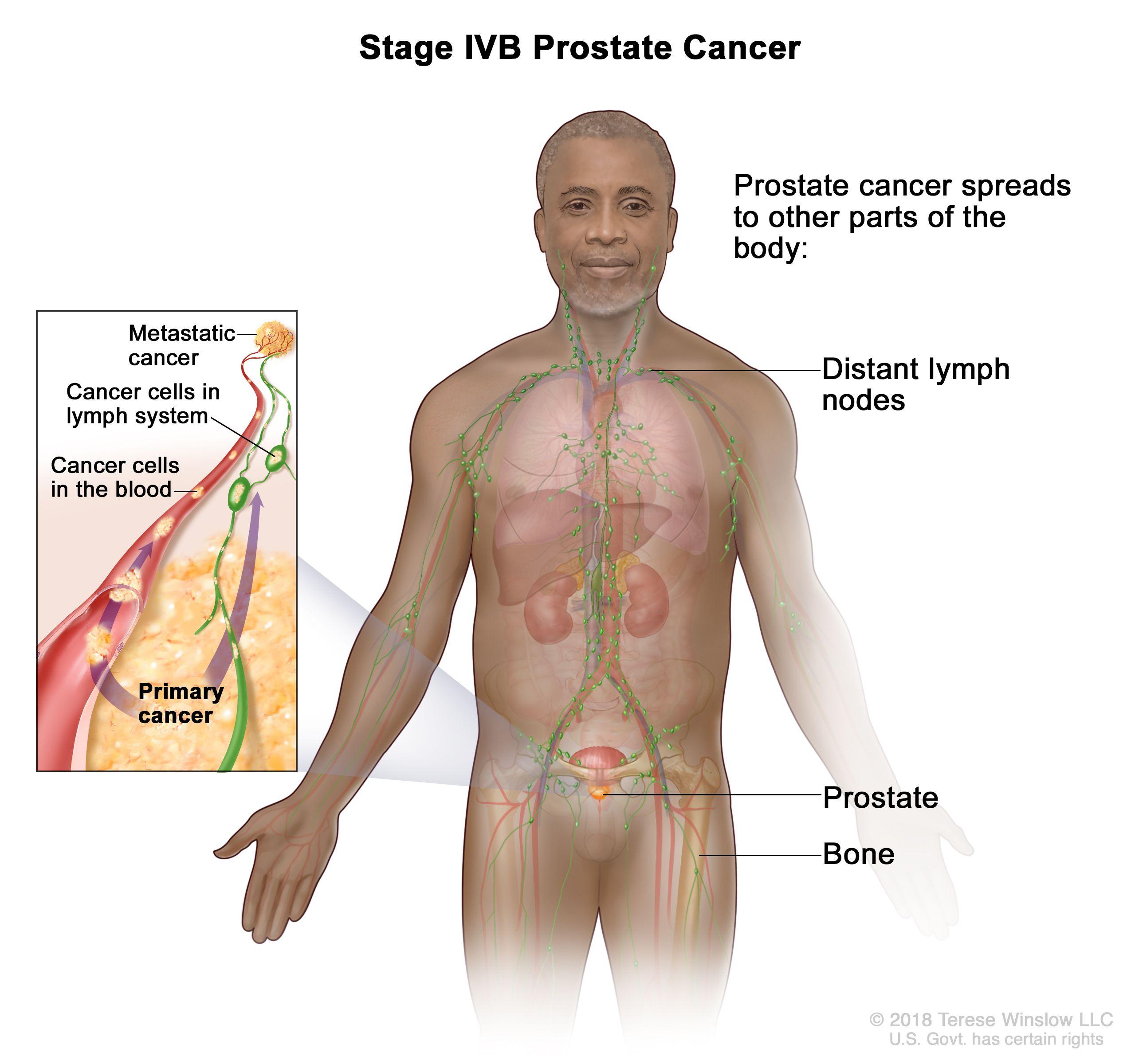 cancer hormonal prostata)