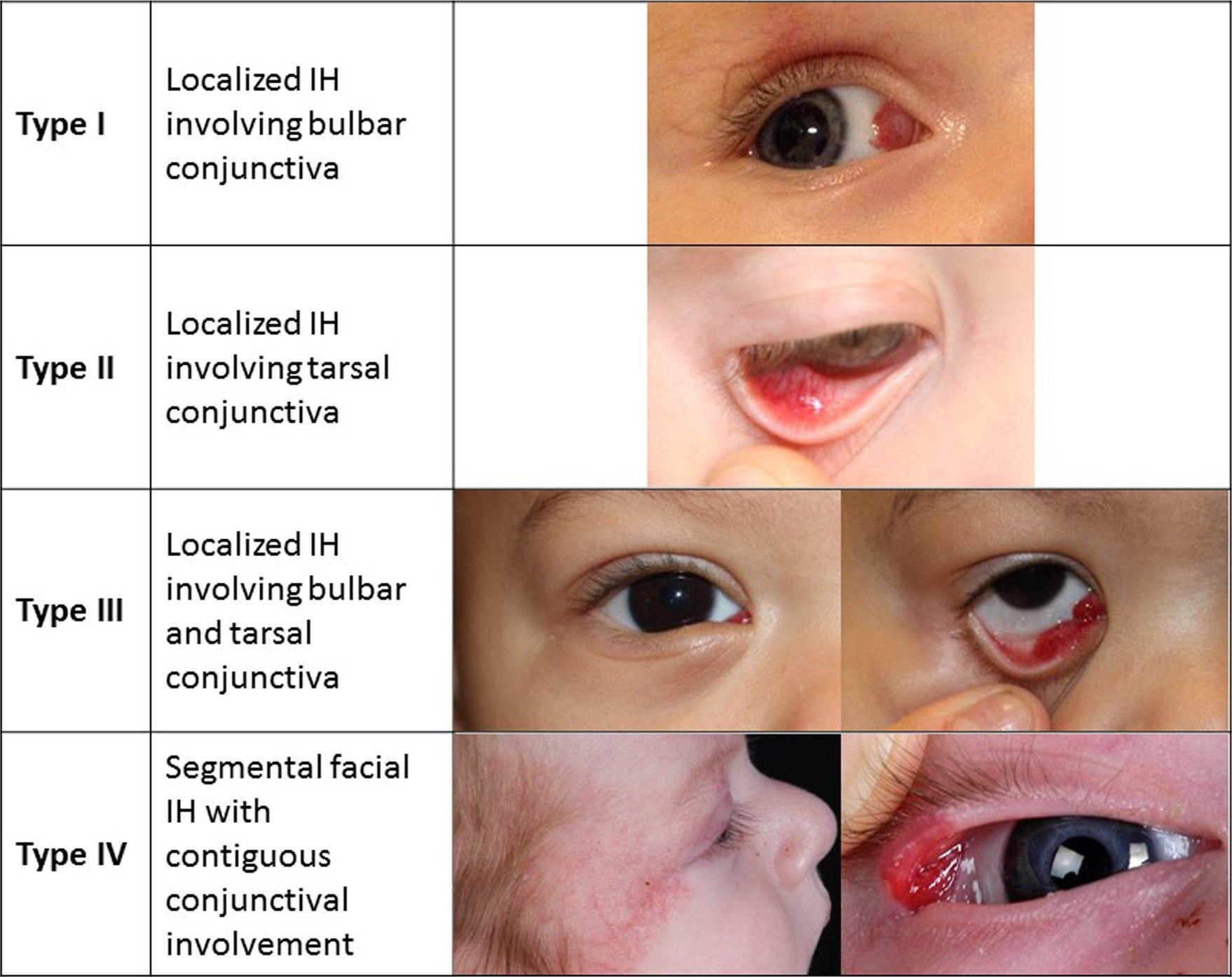 結膜に及ぶ異なる種類の乳児血管腫を示す写真。