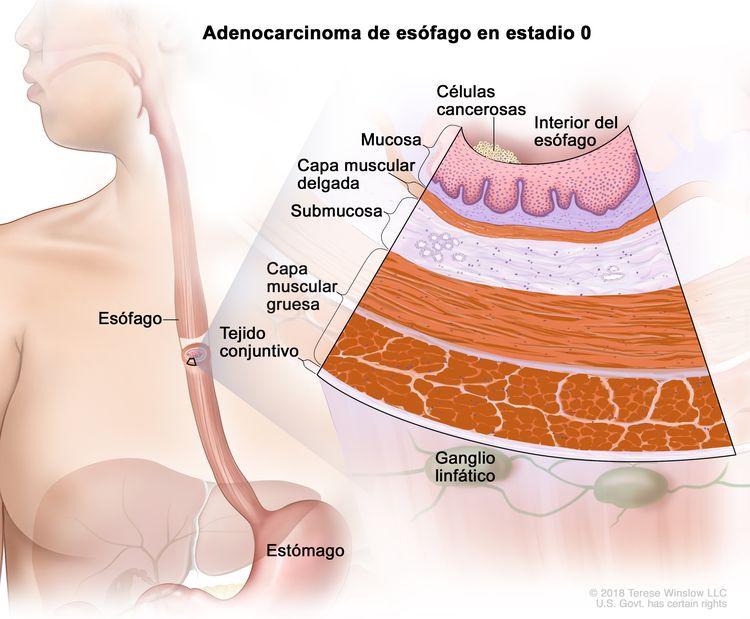 Adenocarcinoma de esófago en estadio 0. En la imagen se observan el esófago y el estómago. En una ampliación, se muestran células cancerosas en el revestimiento interno de la pared del esófago. Además, se observan la mucosa, la capa muscular delgada, la submucosa, la capa muscular gruesa y el tejido conjuntivo de la pared del esófago. También se muestran ganglios linfáticos.