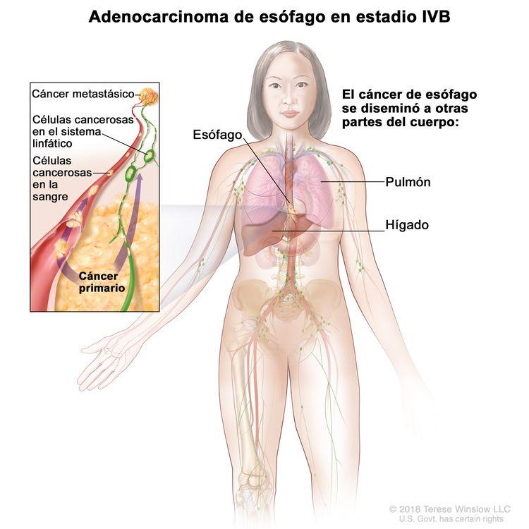 Adenocarcinoma de esófago en estadio IVB. En la imagen se observan otras partes del cuerpo donde se puede diseminar el cáncer de esófago, como el hígado y el pulmón. En un recuadro, se muestran células cancerosas que se diseminan desde el esófago, a través de la sangre y el sistema linfático, hasta otra parte del cuerpo en la que se formó el cáncer metastásico.