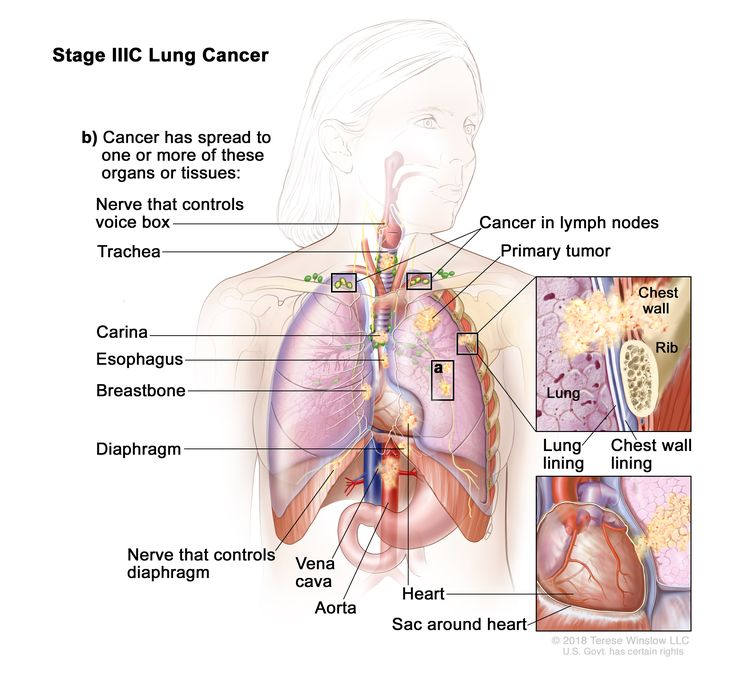 Stage IIIC lung cancer; drawing shows a primary tumor in the left lung and (a) separate tumors in the same lobe of the lung with the primary tumor. Also shown is cancer in lymph nodes above the collarbone on the same side and opposite side of the chest as the primary tumor. Also shown is (b) cancer that has spread to the following: the chest wall and the lining of the chest wall and lung, the nerve that controls the voice box, the trachea, the carina, the esophagus, the breastbone, the diaphragm, the nerve that controls the diaphragm, the heart, the aorta and vena cava, and the sac around the heart.