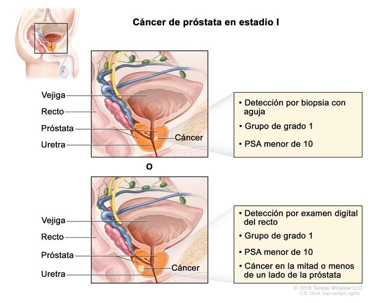 Cáncer de próstata en estadio I. Se observa una imagen con dos paneles. En el panel superior, se observa cáncer en menos de la mitad del lado derecho de la próstata que se detecta por una biopsia con aguja. En el panel inferior, se observa cáncer en menos de la mitad del lado izquierdo de la próstata que se detecta por un examen digital del recto. En ambos paneles, la concentración del PSA es menor de 10 y el grupo de grado es 1. También se muestran la vejiga, el recto y la uretra.