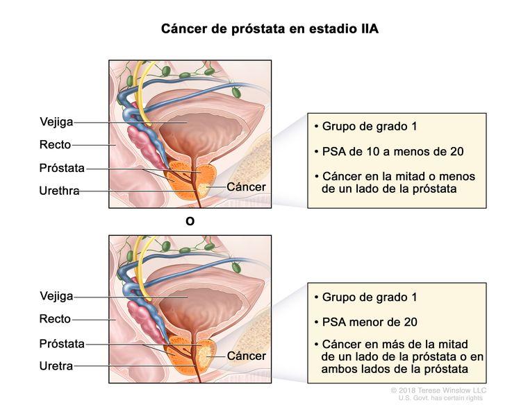 Cáncer de próstata en estadio IIA. Se observa una imagen con dos paneles. En el panel superior, se observa cáncer en la mitad o menos de un lado de la próstata. La concentración del PSA es de 10 a menos de 20 y el grupo de grado es 1. En el panel inferior, se observa cáncer en más de la mitad de un lado de la próstata. La concentración del PSA es menor de 20 y el grupo de grado es 1. En ambos paneles, también se muestran la vejiga, el recto y la uretra.