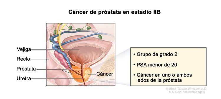 Cáncer de próstata en estadio IIB. En la imagen se observa cáncer en un lado de la próstata. La concentración del PSA es menor de 20 y el grupo de grado es 2. También se muestran la vejiga, el recto y la uretra.