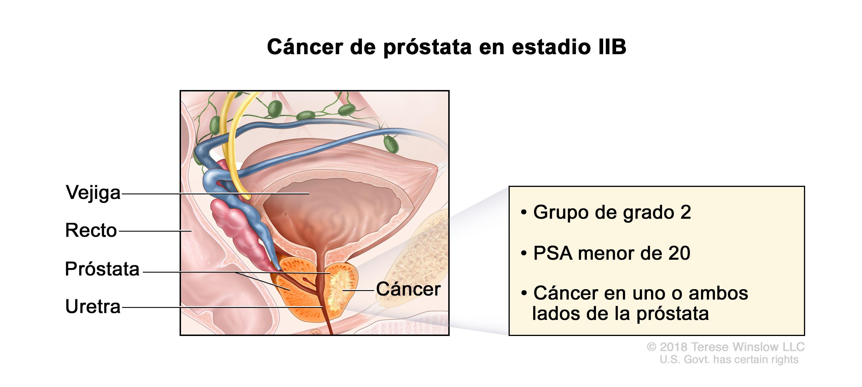adenoma de prostata grado 2