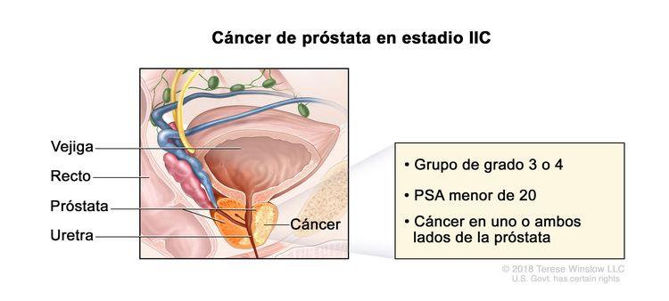 Cáncer de próstata en estadio IIC. En la imagen se observa cáncer en ambos lados de la próstata. La concentración del PSA es menor de 20 y el grupo de grado es 3 o 4. También se muestran la vejiga, el recto y la uretra.
