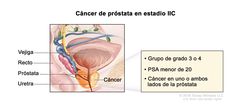 EüM szakmai irányelv. a prosztatarák diagnosztikájáról, sebészi és hormonkezeléséről 1