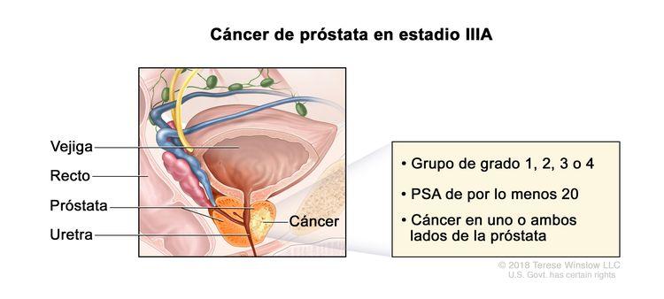 Cáncer de próstata en estadio IIIA. En la imagen se observa cáncer en un lado de la próstata. La concentración del PSA es de por lo menos 20 y el grupo de grado es 1, 2, 3 o 4. También se muestran la vejiga, el recto y la uretra.