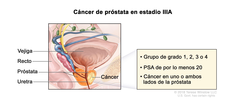 cancer de uretra pronostico