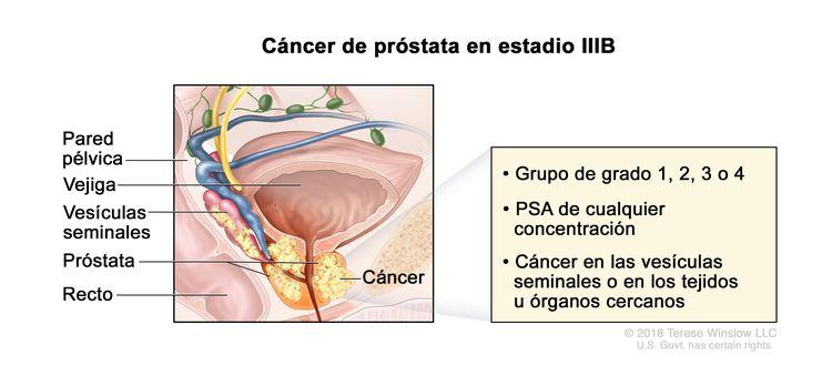 Cáncer de próstata en estadio IIIB. En la imagen se observa cáncer que se diseminó de la próstata a las vesículas seminales y al tejido cercano. El PSA es de cualquier concentración y el grupo de grado es 1, 2, 3 o 4. También se muestran la pared pélvica, la vejiga y el recto.
