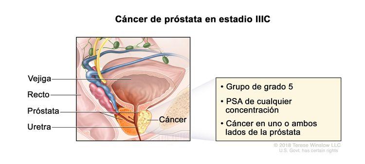 Cáncer de próstata en estadio IIIC. En la imagen se observa cáncer en un lado de la próstata. El PSA es de cualquier concentración y el grupo de grado es 5. También se muestran la vejiga, el recto y la uretra.